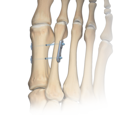 hallux valgus measurement